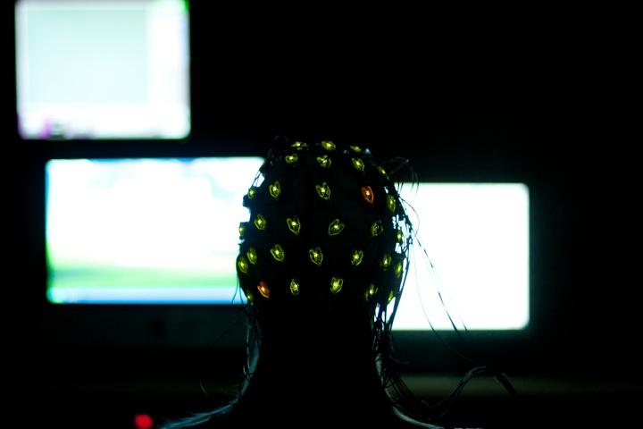 Hirnstrommessung per Elektroenzephalogramm (EEG)